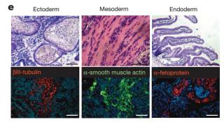논란이 된 STAP 세포 종양(테라토마) 형성 이미지. 오보카타 연구주임의 박사학위 논문에 쓰인 이미지와 같다는 사실이 밝혀졌다. - Nature 제공
